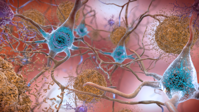 Holding Your Blood Sugar In Examine Could Reduce Your Alzheimer's Hazard